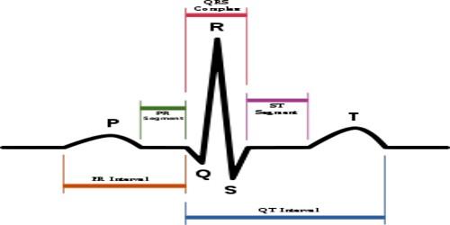 Electrocardiogram (E.C.G)