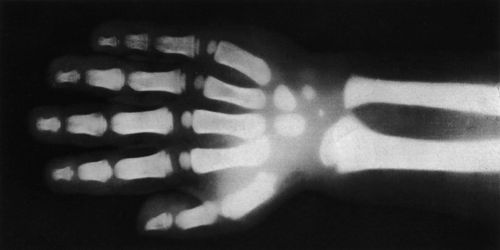 X-rays or Röntgen Rays
