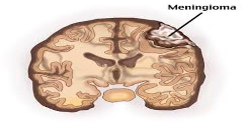 What is Meningioma?
