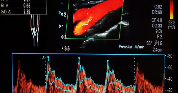 Researchers developed usability and precision in vascular imaging