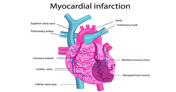 Researchers found Treatment Shows promising results in Heart Failure after Myocardial Infarction