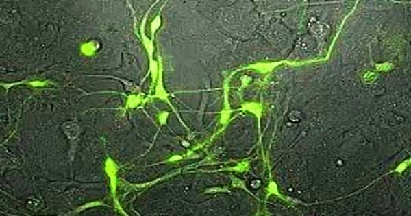 Researchers determine which neurons dilated the cerebral blood vessels