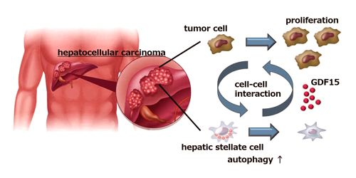 Liver cancer cells causes Stromal Cells to enhances tumor growth 1