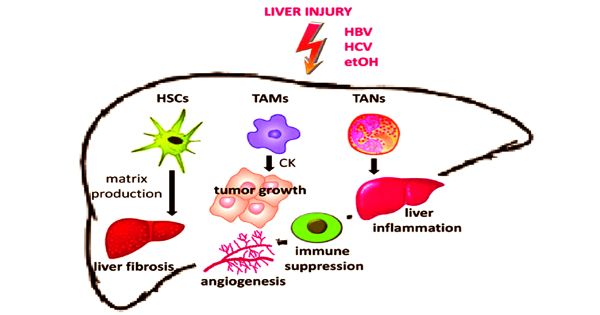 Liver cancer cells cause Stromal Cells to enhances tumor growth