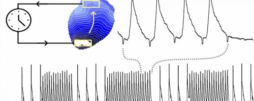Scheming cardiovascular waves with light to identify abnormity rapid heart rhythms 1