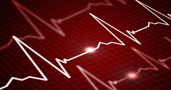 Scheming cardiovascular waves with light to identify abnormity rapid heart rhythms