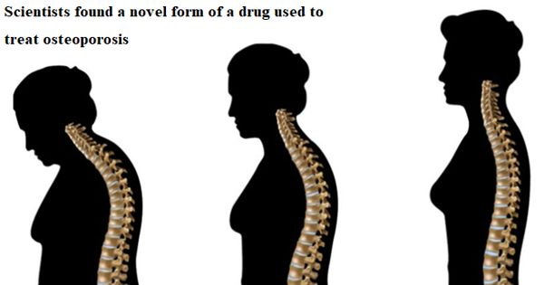 Scientists found a novel form of a drug used to treat osteoporosis