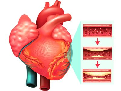 Skin may help to predict heart disease 1
