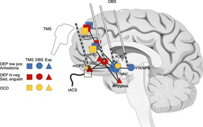 Effect-electrical-stimulation-personalized-medicine-with-deep-brain-stimulation-1