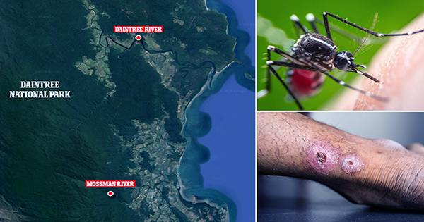 Deadly-Flesh-Eating-Bacteria-In-Australia-May-Be-Spreading-Via-Possum-Poop-Or-Mosquitos-1