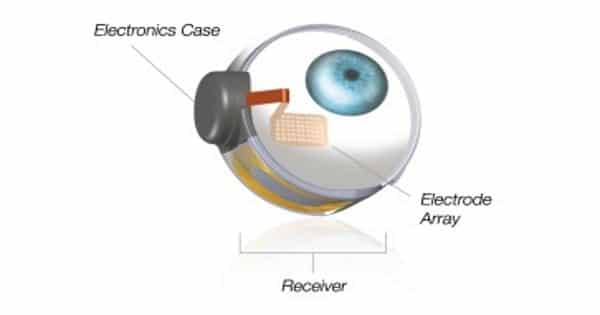Engineers-is-developing-a-retinal-implant-that-could-moderately-restore-vision-in-blind-people-1