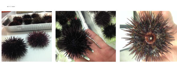 Geneticist-uncover-the-diversity-of-sea-urchin-microbiome-1