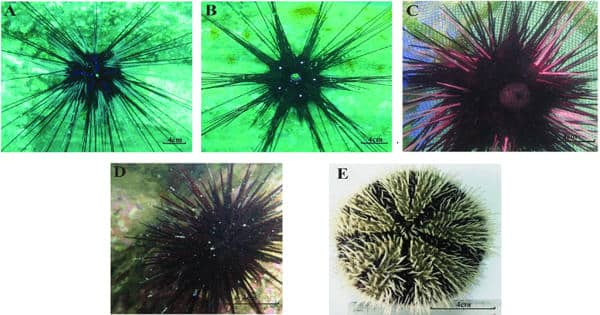 Geneticist uncover the diversity of the sea urchin microbiome