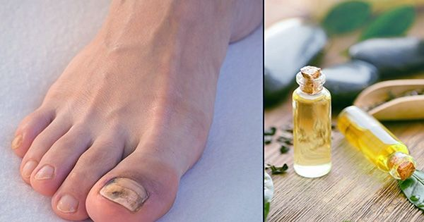 You Can Taste Garlic by Rubbing It into Your Feet, American Chemical Society Demonstrates