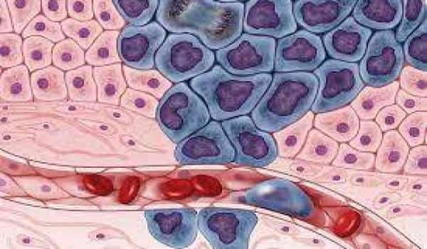 T-cell-possible-to-arrest-tumor-growth-for-a-variety-of-cancers-1