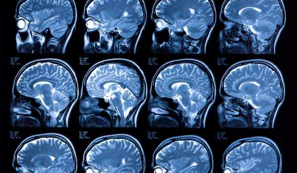 Brain-MRI-Image-Labeling-is-Automated-by-Researchers-1