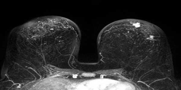 In-MRI-Breast-Cancer-Screening-Prediction-Models-could-Reduce-False-Positives-1