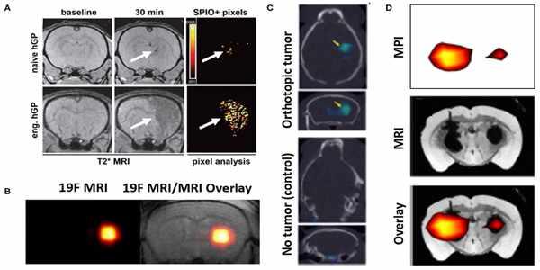 MRI-Magnetic-Field-Influences-Blood-brain-Focused-ultrasonic-Barrier-1