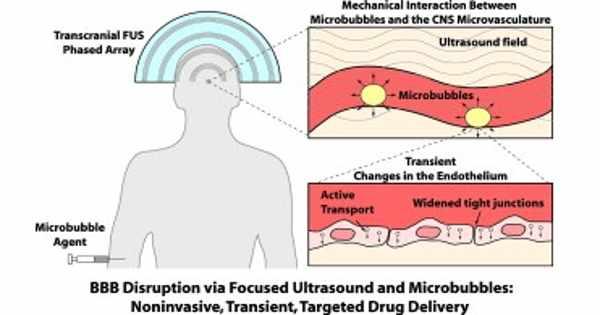 MRI Magnetic Field Influences Blood-brain Focused-ultrasonic Barrier
