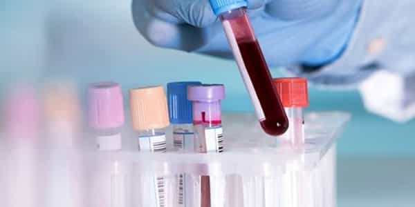 A-New-Test-for-Detecting-Depression-in-Blood-Samples-has-been-developed-1