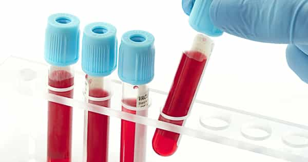 A New Test for Detecting Depression in Blood Samples has been developed