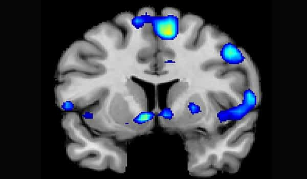 Humans-Spiritualitys-Brain-Circuitry-is-Being-Mapped-1