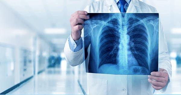 Man makes his own X-Ray Machine after the Hospital Charges him $70,000