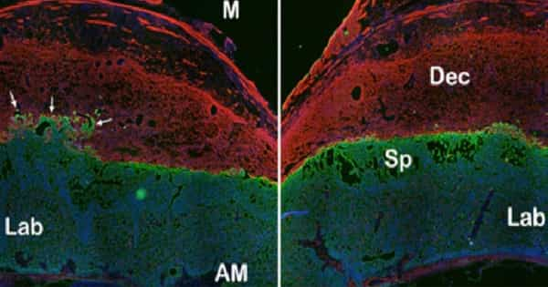 Study reveals how Body's Type 2 Innate Immune Response System Works