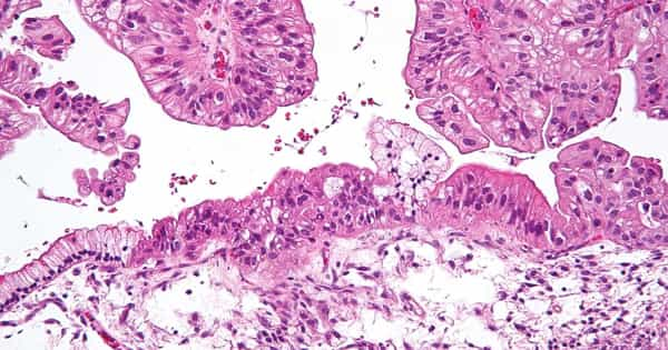 In Ovarian Cancer Subtypes with Poor Prognoses, Scientists discovered a New Therapeutic Target