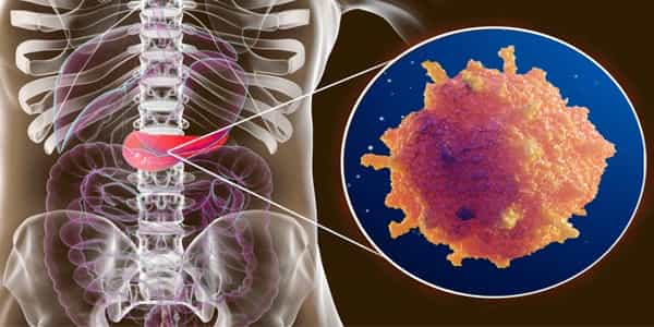 Pancreatic-Cancer-Treatment-may-be-improved-by-using-Lab-grown-Tumor-Models-1